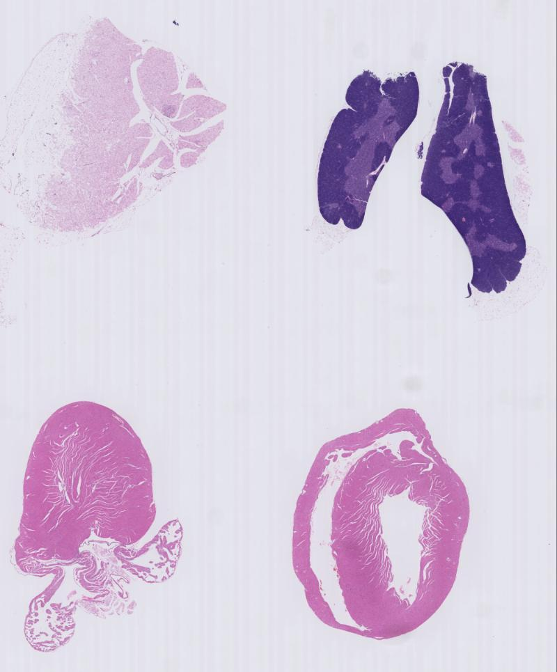 Nf1 Accessionmgi97306 Histology Slide Impc Images Information